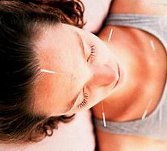 How Does Acupuncture Help With Aches and Discomfort?