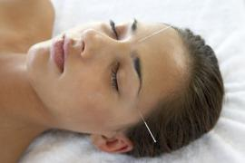 Acupuncture, an Alternative Choice for Migraine Headaches?