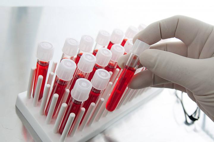 Determination of disease by a blood test