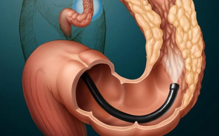 Surgical treatment of colon tumor