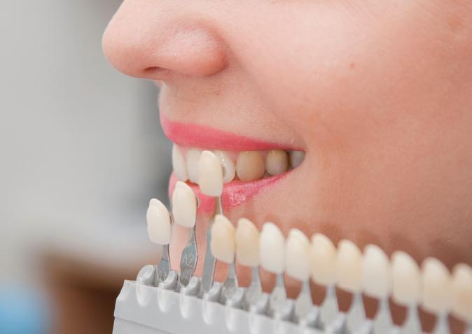 Information About Dental Veneers