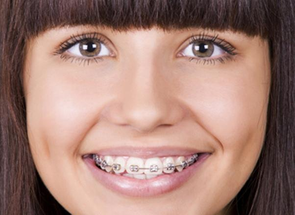 What you should know about lingual braces?