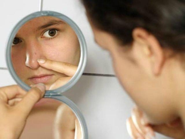 Acne Care and Solutions