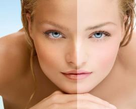 5 Ways to Address or Get Rid of Vitiligo at Home