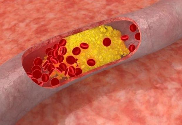 Making A Healthy Lifestyle By Understanding Cholesterol Control