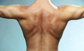 Back Pain Cures - 15 Awesome Natural Home Remedies