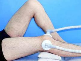 Tailor-Made Knee Replacement