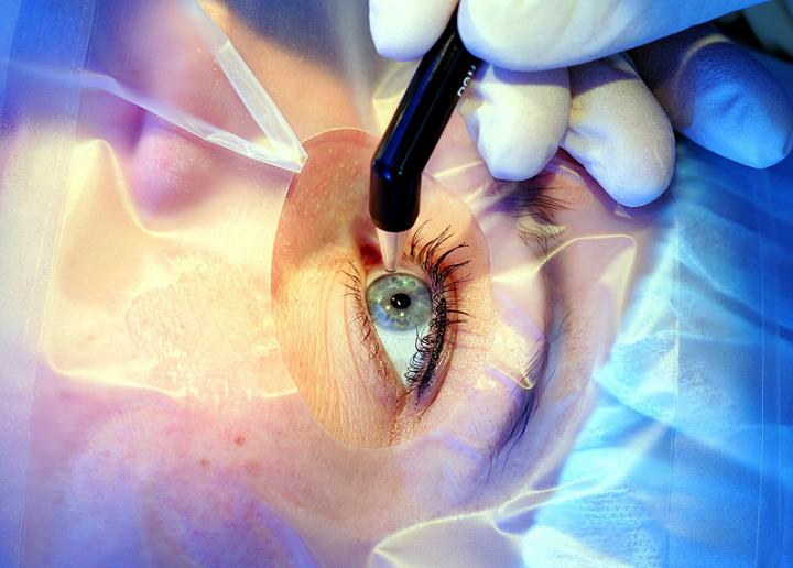Safer and Faster Techniques to Enhance Eyesight With Cornea Transplants
