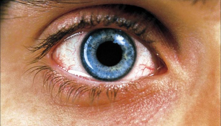 Combined pharmacotherapy of Uveitis