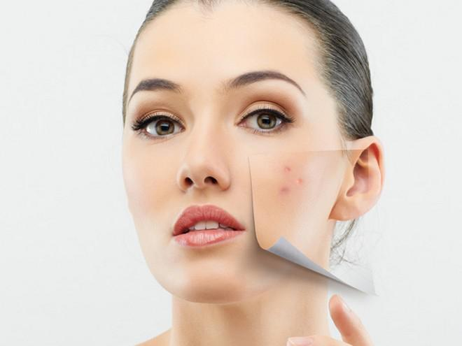 The Best Sources for Acne Scar Removal Products