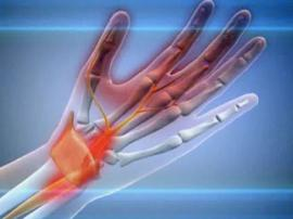 Carpal Tunnel Syndrome: Help yourself