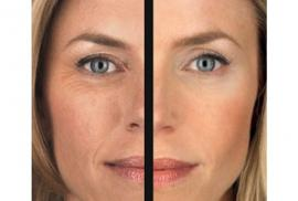 Why Skin Tightening is So Worth It