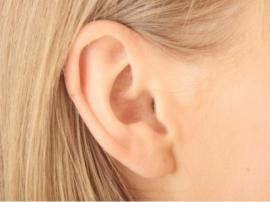 Otoplasty Affordable Ear Correction