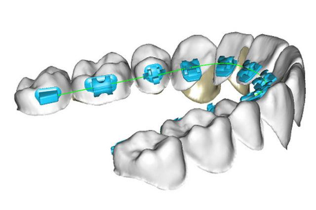 Lingual Teeth Braces