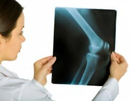 Signs and Symptoms of Osteo Arthritis